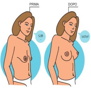 Mastopessi: tirare su il seno senza ingrandirlo con una protesi