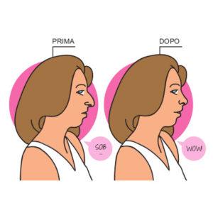 Rinoplastica: intervento al naso o correzione del setto nasale